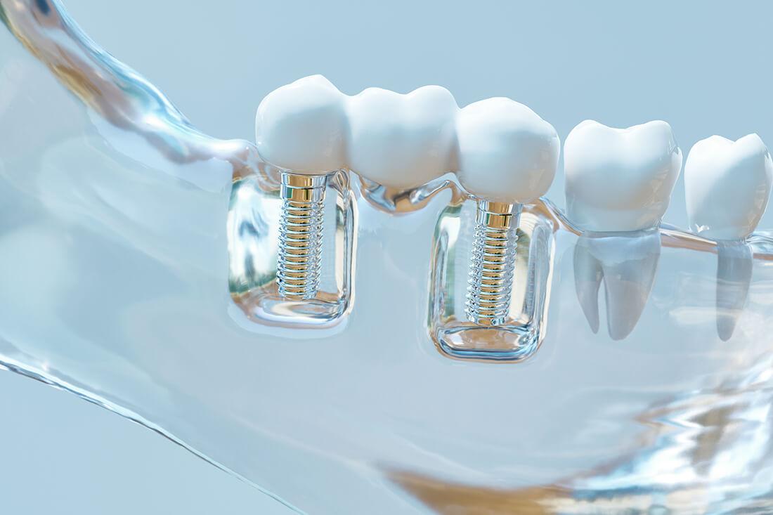 Zahnarzt-Tegel-Ubbelohde-Implantologie