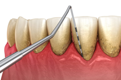 Zahnarzt-Tegel-Ubbelohde-Parodontologie